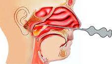 Удаление кисты гайморовой пазухи носа Лечение и