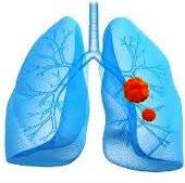 Признаки рака лёгких разнообразны и